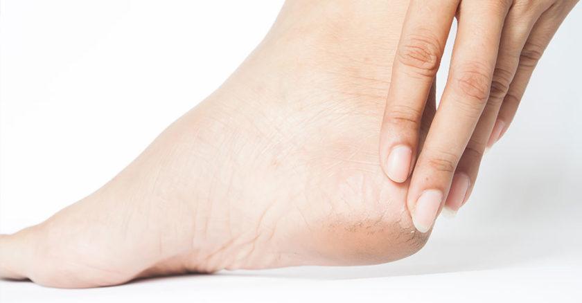 Dolore al piede: cause, sintomi e rimedi naturali